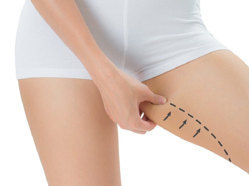 how-to-lose-inner-thigh-fat